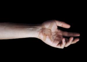 wound treatment associate program