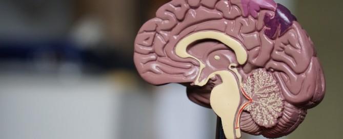 acute focal neurological deficits